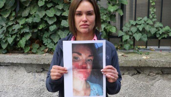 Ankara'da korkunç olay! Güzellik uzmanı, Rus eşini öldüresiye dövdü