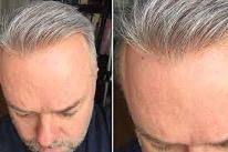 Tap Hair İle Protez Saç Kullanımına Dair Her Şey