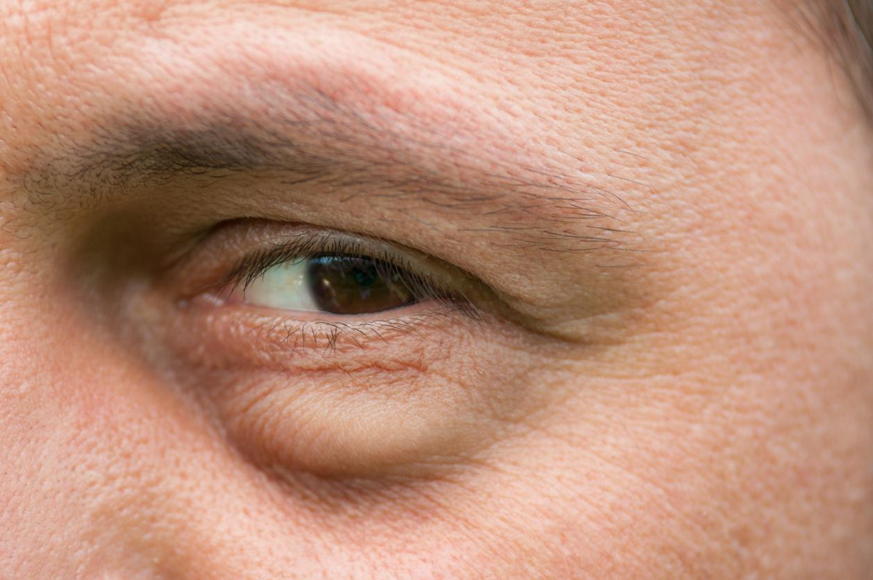 50 yaş üzerindeki kişilere önemli uyarı: Gözlerdeki bu belirtileri...